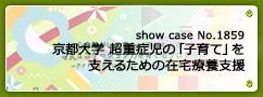 No.1859  京都大学 超重症児の「子育て」を支えるための在宅療養支援